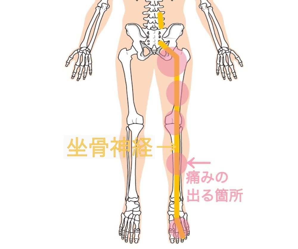 神経痛 原因 坐骨